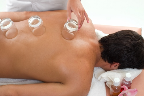 natural healing-cuppingdreamstime 592262 (2) (500x333)